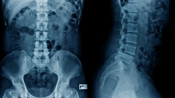 Xray given to a back injury lawyer